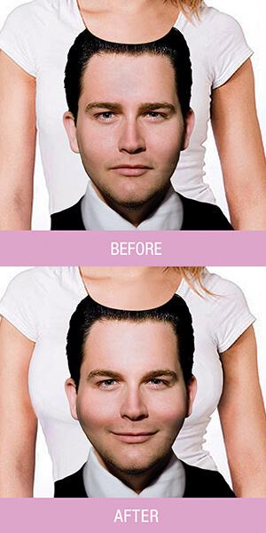 가슴성형광고